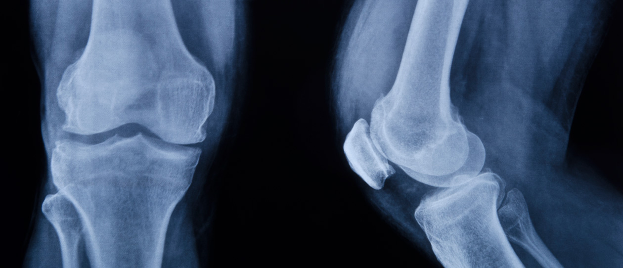 Chondroitin sulfate effective for osteoarthritis